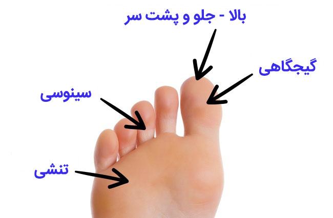 ماساژ پا برای رفع سردرد