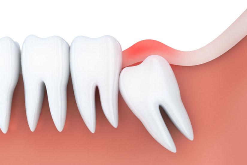 علت و علائم درد دندان عقل