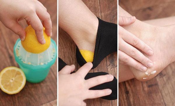 درمان ترک پاشنه پا با لیمو