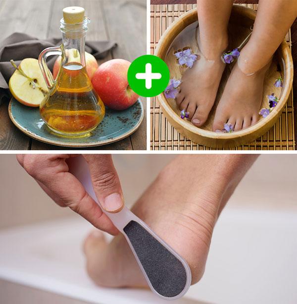 درمان ترک پا با سرکه سیب