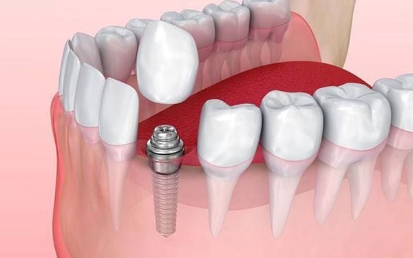 عکس مراحل ایمپلنت دندان