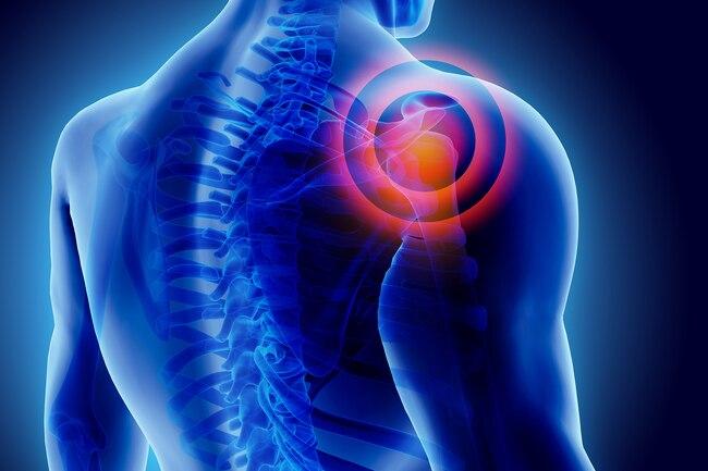 علائم و روش های درمان سندروم شانه یخ زده