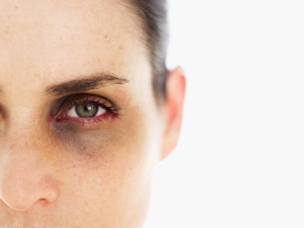 رفع قطعی سیاهی دور چشم