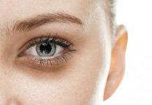 علت سیاهی و کبودی زیر چشم