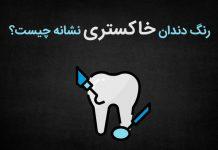 رنگ دندان خاکستری نشانه چیست