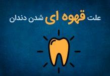 علت جرم قهوه ای دندان چیست؟