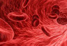 روش های تسریع جریان خون